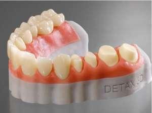 Зубные техники, литейное производство, гипсовка - изображение 1