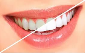 Профессиональное отбеливание зубов в Киеве. Безопасное отбеливание зубов. - изображение 1