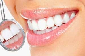 Процедура отбеливания зубов Киев - изображение 1