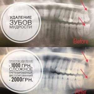 Удаление зубов мудрости - изображение 1