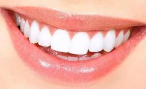 Эффективное отбеливание зубов в г. Киев. Отбеливание зубов до 8 тонов в Киеве. - изображение 1